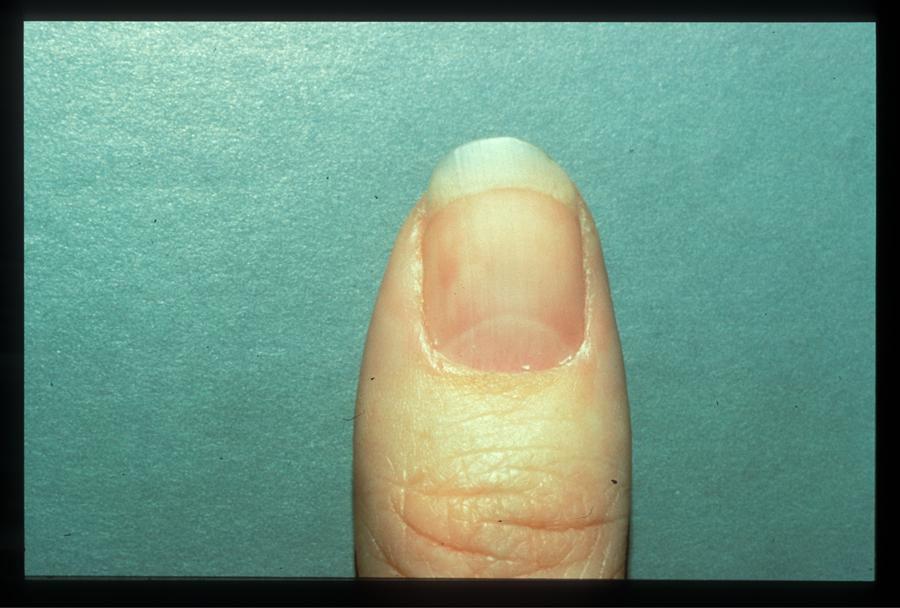 nail tumor