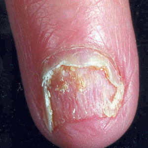 This shows onycholysis after the nail has been cut back.
