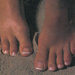 Foot Fixers: Great Ideas for Services and Spotting Foot Disorders