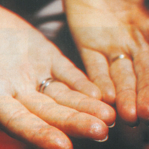 Raynaud's Phenomenon: A Tale of Two Clients