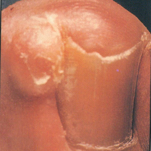 Ingrown Nails Are Preventable