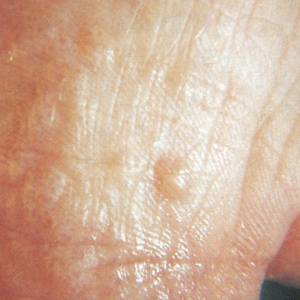 Chronic eczema (this photo) and chronic athlete's foot (other photo) can both exhibit scaly,...