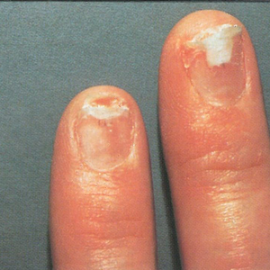 Clients And Technicians Can Live With Contact Dermatitis