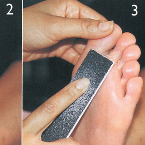 Caring for Callused Feet