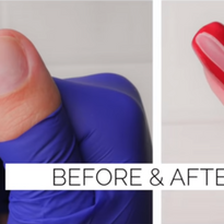 Two Ways to Fix Short Bitten Nails Using Gel