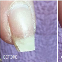 These photos show the progress made following a single IBX treatment.