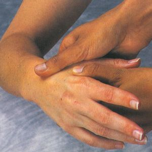 Deep tissue massage can be used to effectively treat a repetitive strain injury such as carpal...
