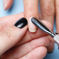 10 Common Causes of Nail Service Breakdown