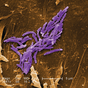 Mycobacterium fortuitum bacteria;By CDC/ Margaret M. Williams; Janice Haney Carr