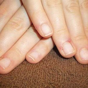 Something to Talk About: Soft, Peeling Nails
