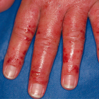 Skin Care Experts See Surge in Allergic Reactions to Nail Products