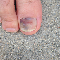 This injury occurred when the toe was repeatedly forced into the tip of a hiking boot while...