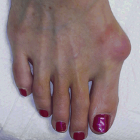 Something to Talk About: Bunions