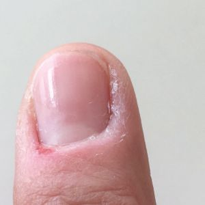 Something to Talk About: Hangnails