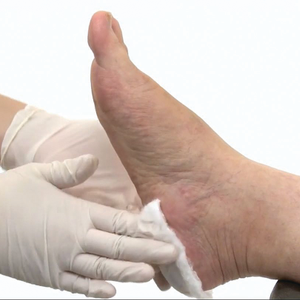 Safe, Gentle Callus and Cuticle Removal