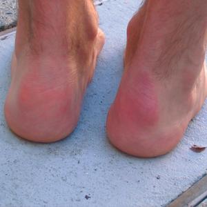 Haglund's Deformity: A bony enlargement on the side of the heel.