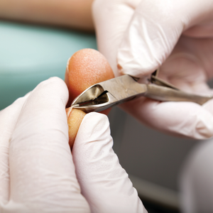 The Industry's Issue With Ingrown Nails