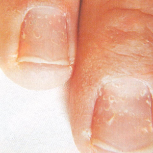 Nutrition and Nails