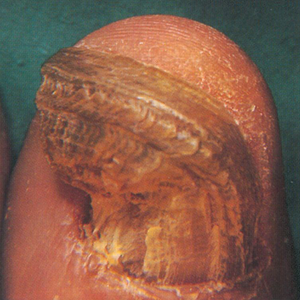 This shows how onychogryphosis is resolved after clearing chronic swelling of the patient's foot.