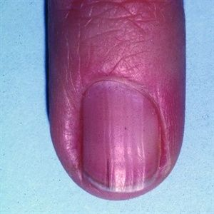 What Are Splinter Hemorrhages? - Health - NAILS Magazine
