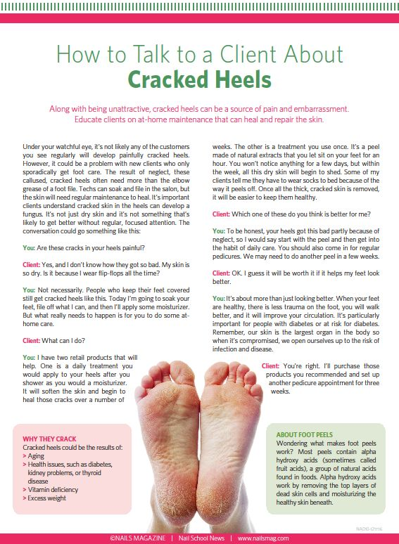 Handout : How to Talk to a Client About Cracked Heels