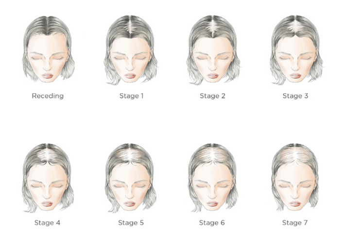 To help salon professionals assist clients in finding the right hair piece for their needs, the Transformations Top Pieces by Raquel Welch team developed this visual that outlines the various stages of hair loss.  -