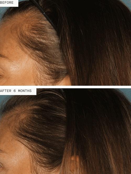 Healthy Abundance: The Nutrafol Approach to Healthy Hair