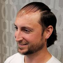 Hair Loss Meets Its Match: Celso Enrique Rivera on the Joy of Hairskeen