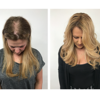 """I have had a hair-pulling disorder since middle school. Hairdreams has not only helped me look..."