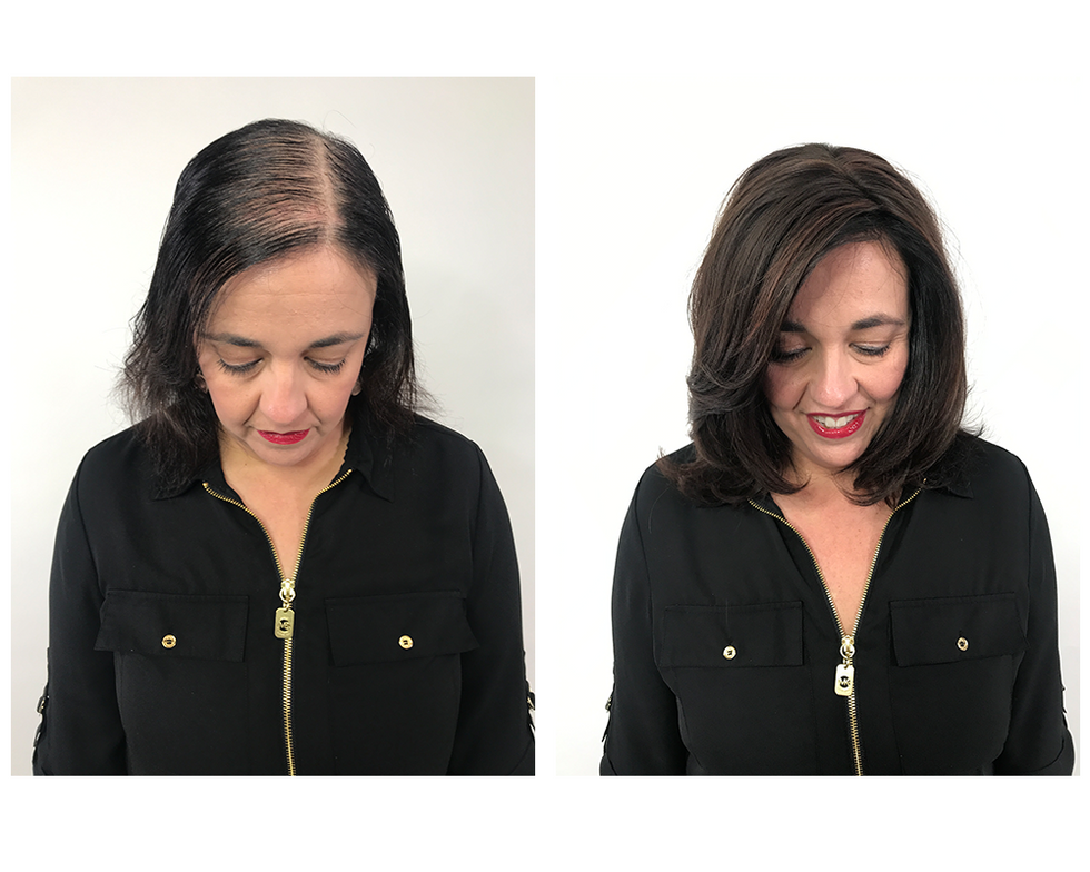 <p><strong>&ldquo;I have hereditary hair loss and have tried everything from supplements to various hair growth systems. Nothing worked until I found Hairdreams MICROLINES.&rdquo;&mdash;Gigi, actual client.&nbsp;</strong></p>