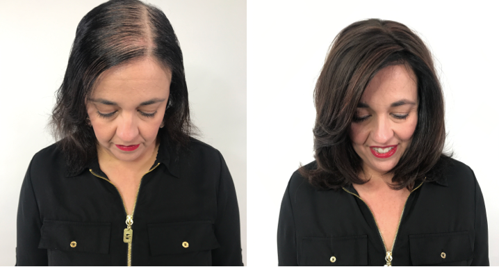<p>&ldquo;I have hereditary hair loss and have tried everything from supplements to various hair growth systems. Nothing worked until I found Hairdreams MICROLINES.&rdquo;&mdash;Gigi, actual client.&nbsp;</p>