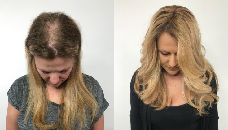 <p>&ldquo;I have had a hair-pulling disorder since middle school. Hairdreams has not only helped me look and feel better but wearing a Hairdreams MICROLINES piece prevents me from pulling at my hair like I did before.&rdquo;&mdash;Elysia, another actual client.</p>