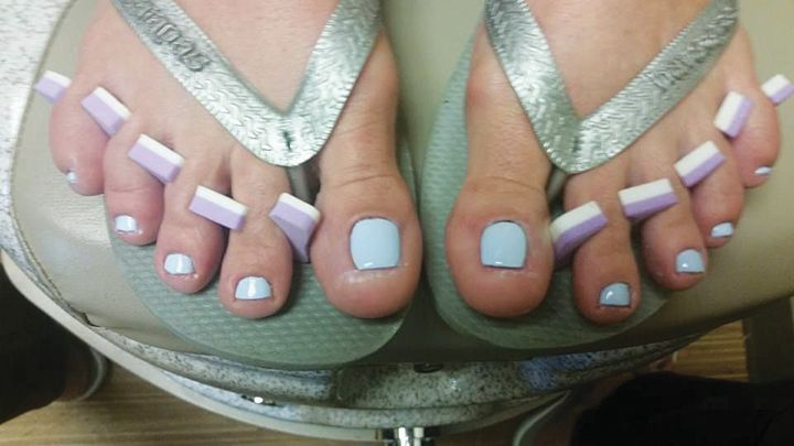 Maureen Gleason used LCN Barefoot to reconstruct the nails. -