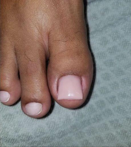 Priscilla DeAbreu of Cattleyas Nail Studio, Guyana, South America, used a fiberglass method to elongate the toenail. -