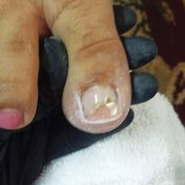 Correcting Toenail Issues — From Stubbed Toes to Total Reconstruction
