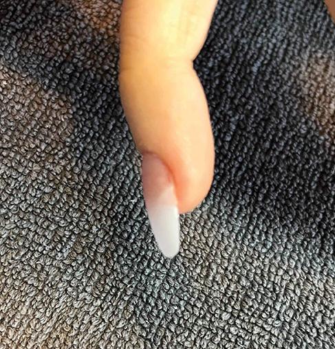 How to Correct Ski Jump Nails