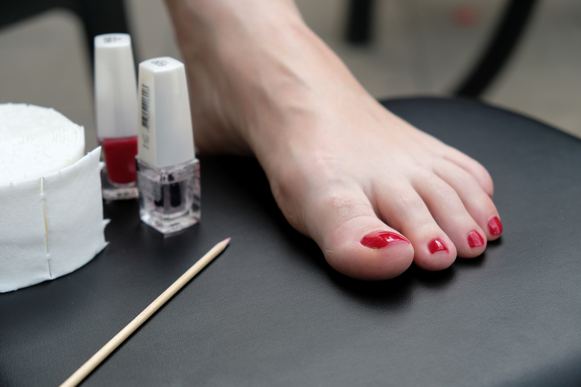 Everything You Wanted to Know About Toenail Pathology