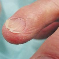 A Day in the Life of a Nail Expert: Mini-Quiz
