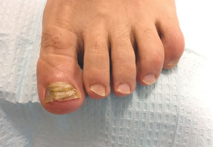 Only 50% of abnormal, thick, discolored toenails are due to fungus. That's why an accurate diagnosis is essential.  -