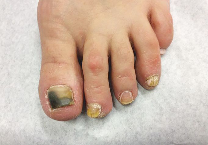 Although the appearance of nail fungus can vary greatly, generally the nail appears yellow, brown, and/or white, thickened, and crumbly.  -