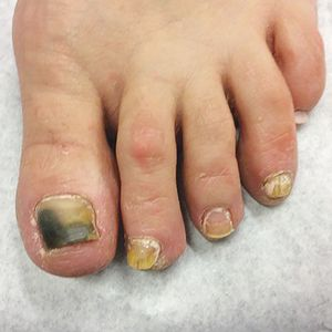 A Day in the Life of a Nail Expert: Diagnosing and Treating Nail Fungus