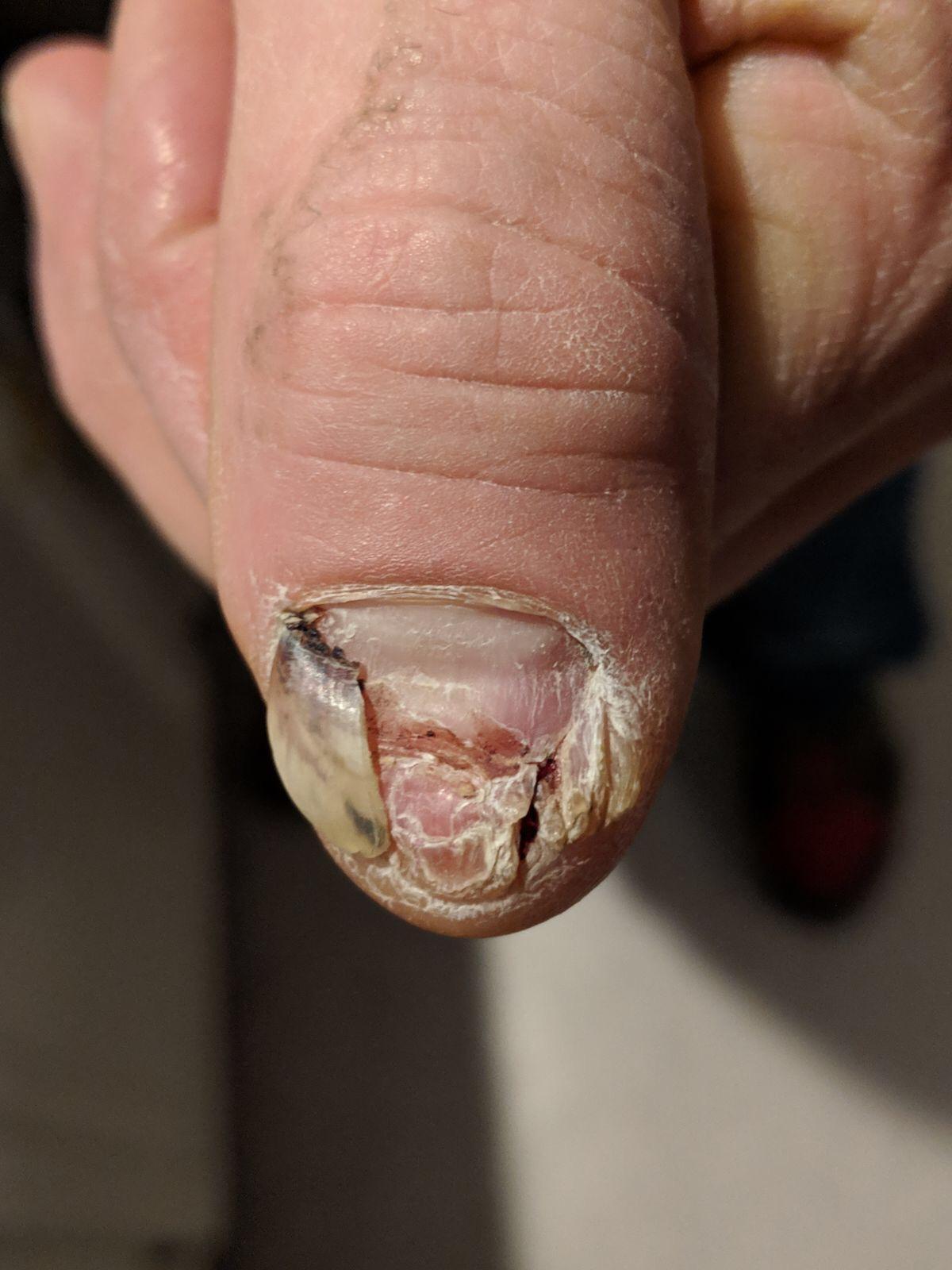The nail on January 10  -