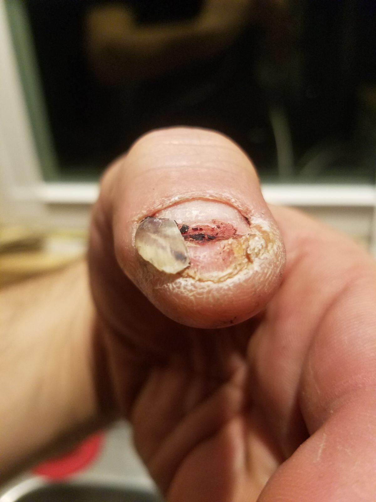 The nail on January 2  -