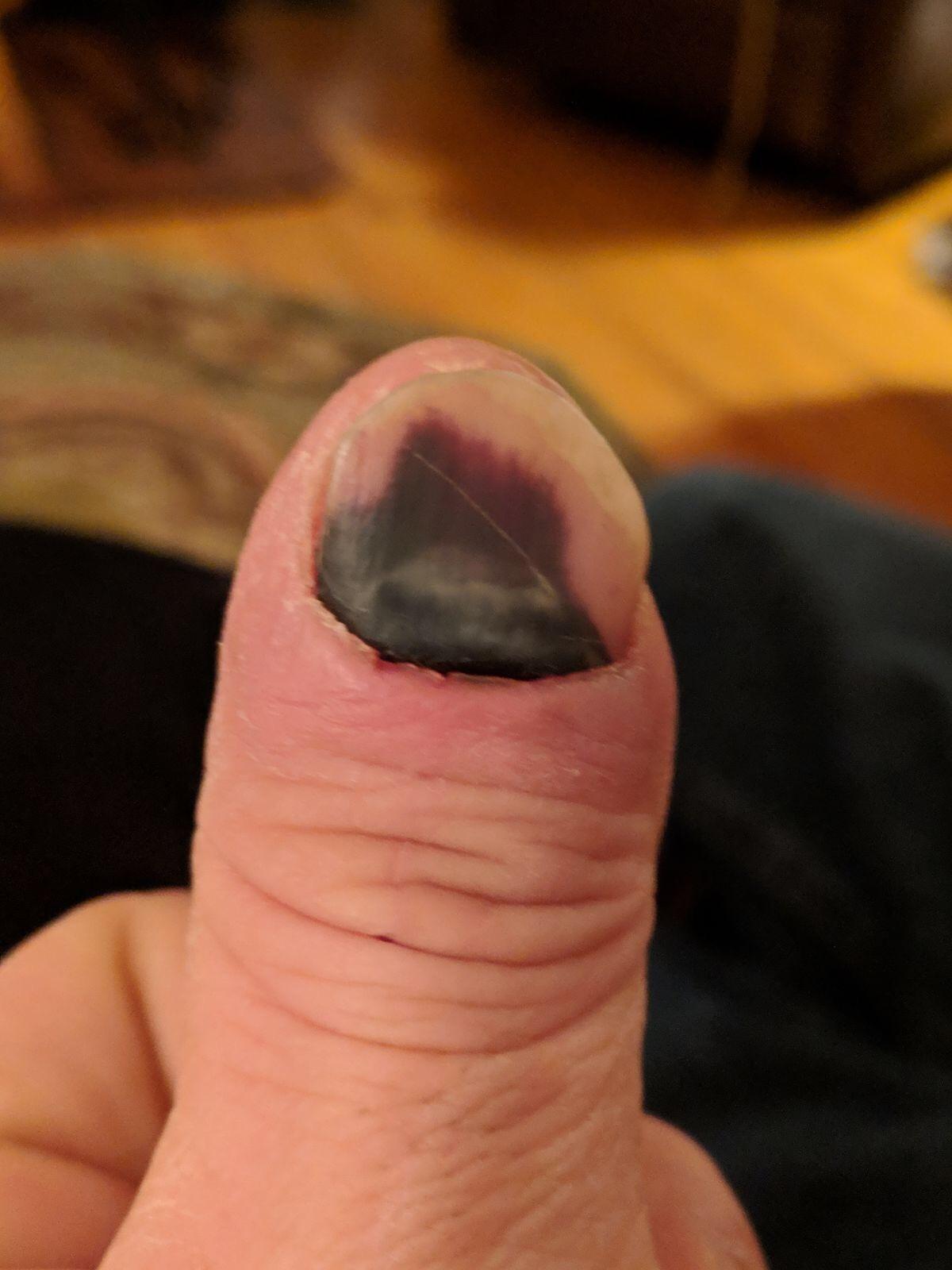 The nail on November 25  -