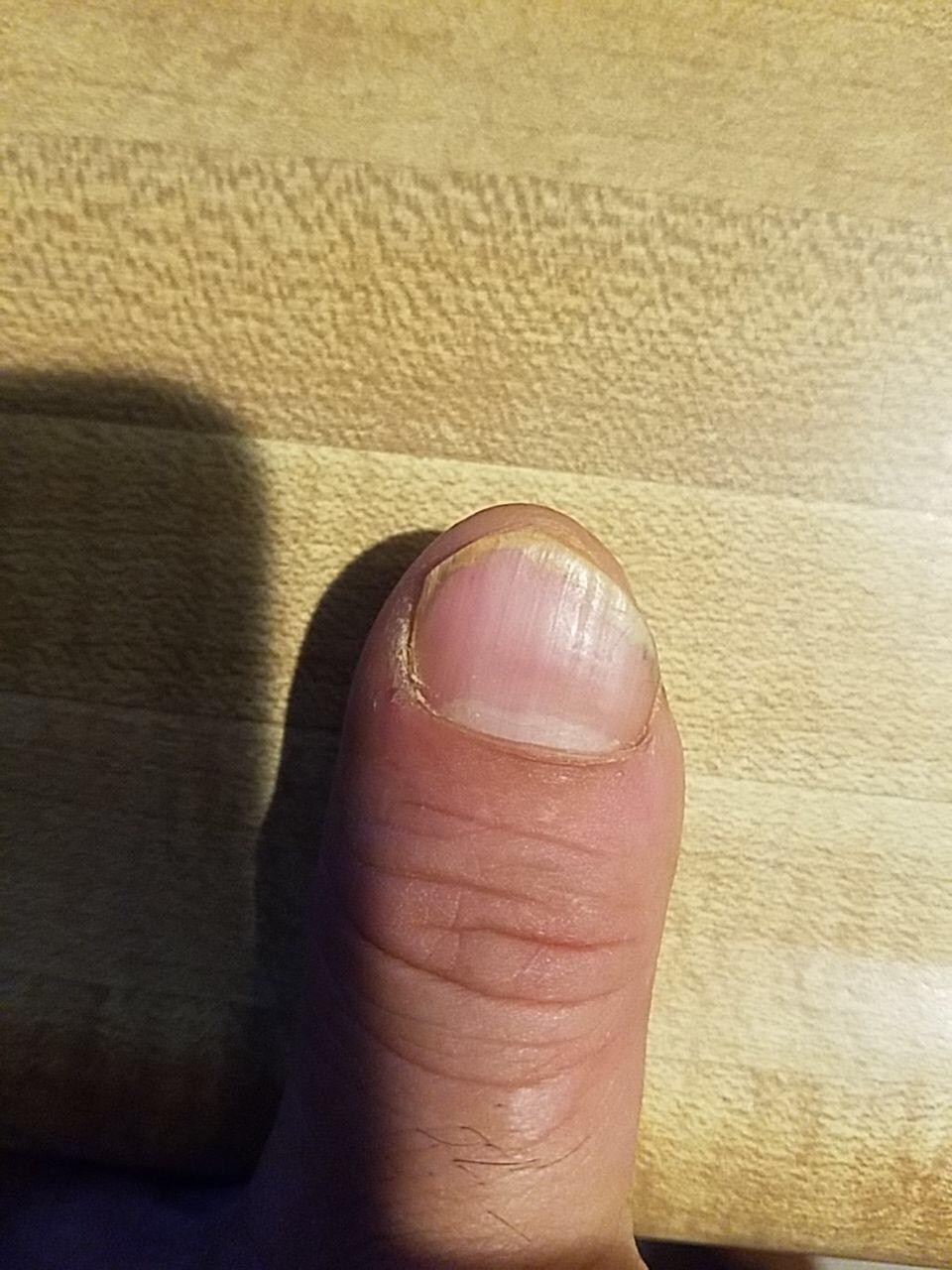 The nail on September 11  -
