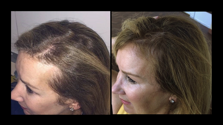 Client Rosemary Tessier not only noticed her hair growing back, she appreciated the additional softness and shine.  -